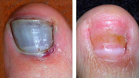 Black Toe Nails - Dr. Howard Green